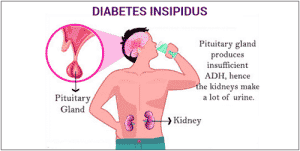 Central (Neurogenic) Diabetes Insipidus - Symptoms, Causes and Treatment