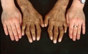 Hemochromatosis (Bronze Diebetes) - Types, Symptoms, Causes and Treatment