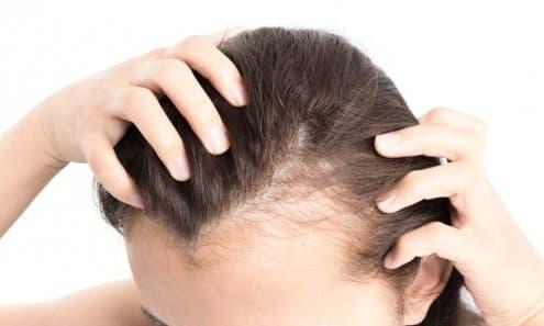 Metformin and Hair Loss