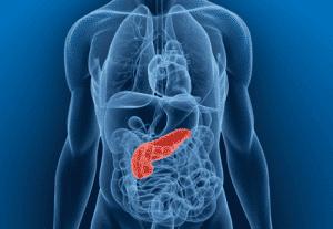 Pancreatitis and Diabetes
