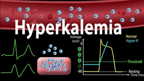 Hyperkalemia (High Potassium Levels) - Signs, Symptoms, Causes and Treatment